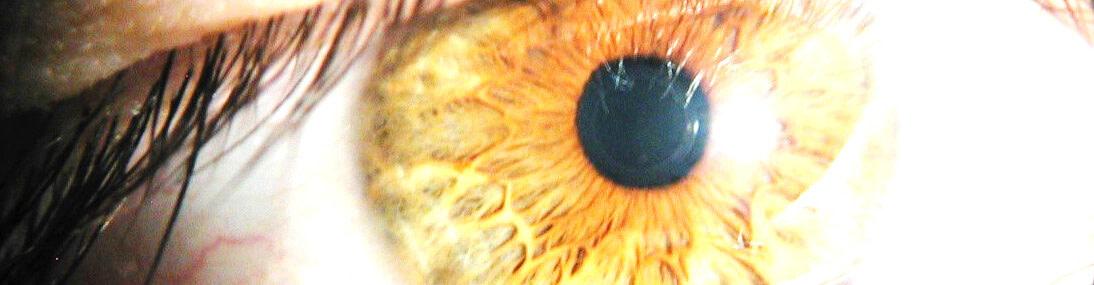 Irisdiagnose